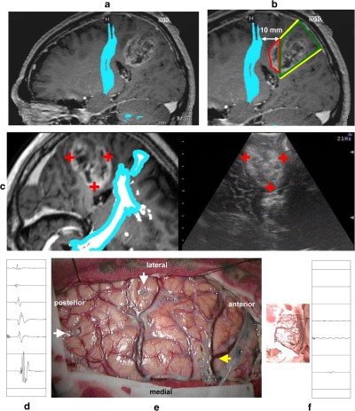 Surgical results of tumor resection using tractography-integrated