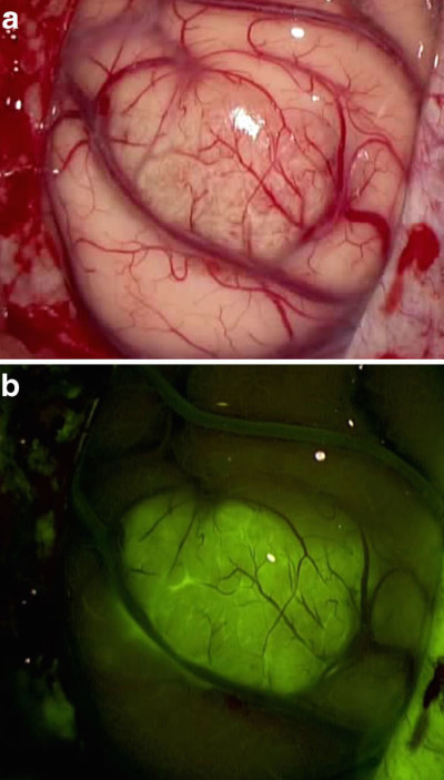 Fluorescein sodium-guided resection of cerebral metastases — experience with the first 30 patients