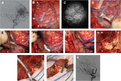 Intraoperative Flow Measurement by Microflow Probe During Surgery for Brain Arteriovenous Malformations