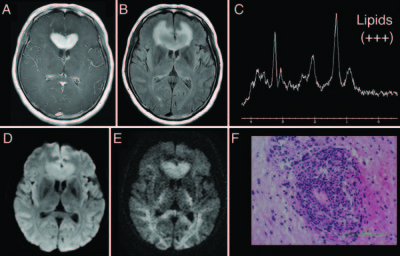 Magnetic resonance spectroscopy detection of high lipid levels in intraaxial tumors without central necrosis- a characteristic of malignant lymphoma