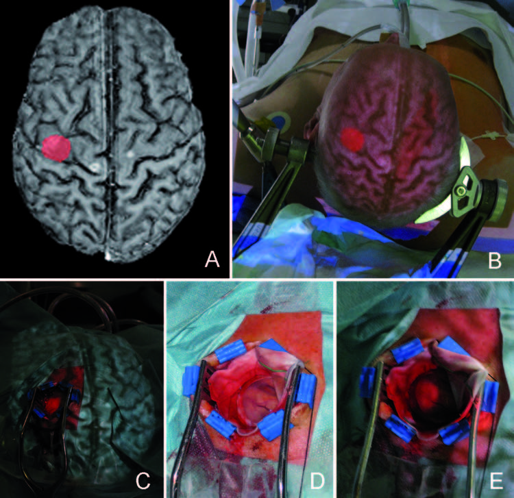 Augmented reality–guided neurosurgery- accuracy and intraoperative application of an image projection technique