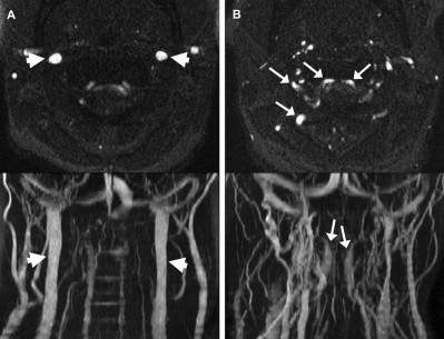 Imaging-Based Features of Headaches in Chiari Malformation Type I