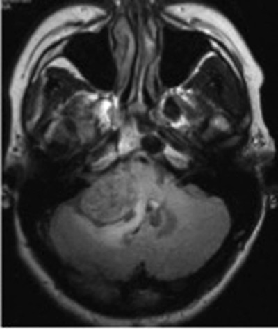 Prognostic Significance of Peritumoral Edema in Patients With Vestibular Schwannomas