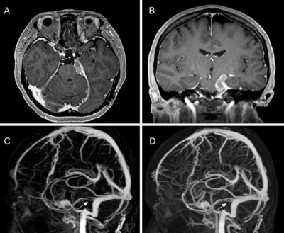 Utility of dynamic computed tomography angiography in the preoperative evaluation of skull base tumors
