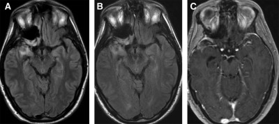 OUTCOMES IN REOPERATED LOW-GRADE GLIOMAS