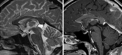 Pineal cyst resection in the absence of ventriculomegaly or Parinaud's syndrome