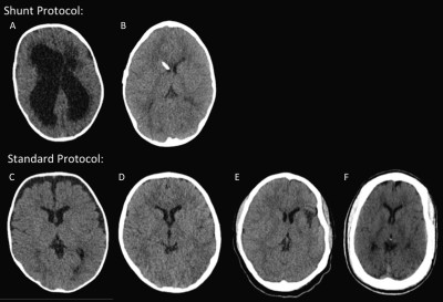 Strategies for Computed Tomography Radiation Dose Reduction in Pediatric Neuroimaging