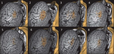 Locating and Outlining the Cortical Motor Representation Areas of Facial Muscles With Navigated Transcranial Magnetic Stimulation
