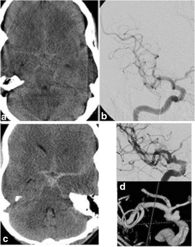 Spontaneous subarachnoid hemorrhage and negative initial vascular imaging—should further investigation depend upon the pattern of hemorrhage on the presenting CT?