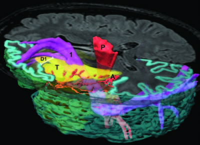 Subcortical anatomy as an anatomical and functional landmark in insulo-opercular gliomas