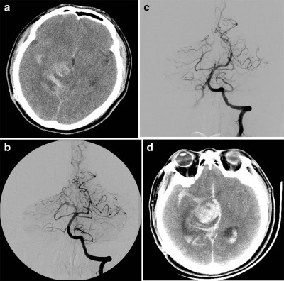 Treatment strategies for dissecting aneurysms of the posterior cerebral artery