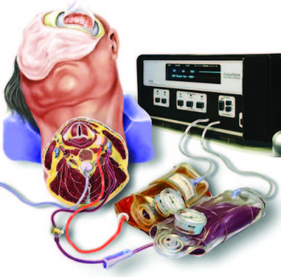 """""""Live cadavers"""" for training in the management of intraoperative aneurysmal rupture"""