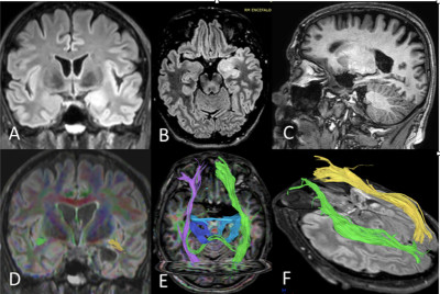 Minimally invasive subfrontal route for the resection of medial temporal region intrinsic tumors