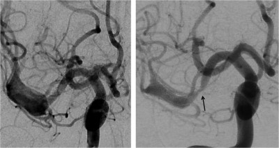 In-Pipeline Stenosis- Incidence, Predictors, and Clinical Outcomes