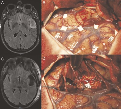 Hypnosis for Awake Surgery of Low-grade Gliomas