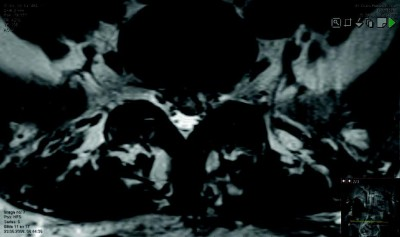 Repeated 3.0 Tesla Magnetic Resonance Imaging After Clinically Successful Lumbar Disc Surgery