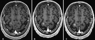 Delayed contrast-enhanced MRI for brain metastases