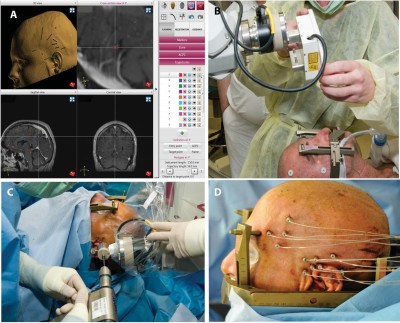 Robot-Assisted Stereoelectroencephalography