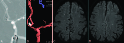 Microembolism after endovascular coiling of unruptured cerebral aneurysms