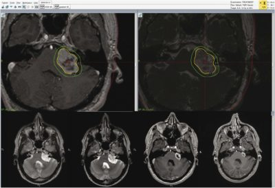 Safety and Efficacy of Gamma Knife Radiosurgery for the Management of Koos Grade 4 Vestibular Schwannomas