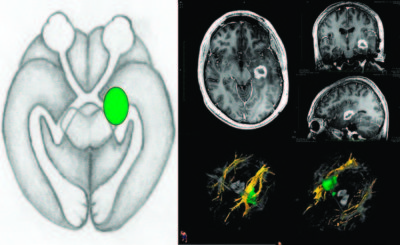 Distinct displacements of the optic radiation based on tumor location revealed using preoperative diffusion tensor imaging