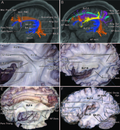 Fiber tracts of the dorsal language stream in the human brain