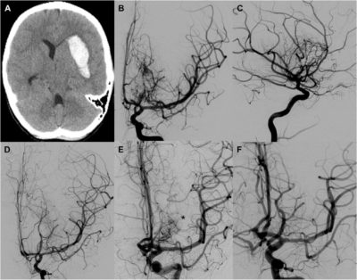 Outcomes of Multimodality Therapy in Pediatric Patients With Ruptured and Unruptured Brain Arteriovenous Malformations