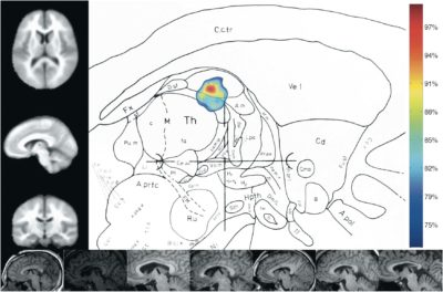 Anterior Nucleus Deep Brain Stimulation for Refractory Epilepsy