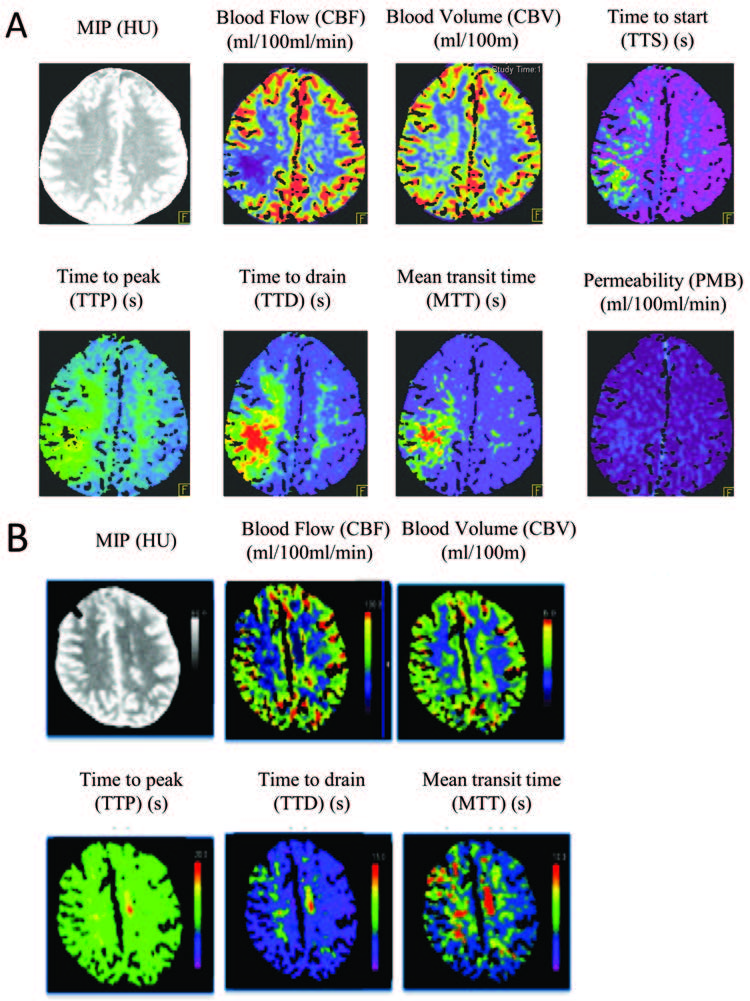 Early whole-brain CT perfusion for detection of patients at risk for delayed cerebral ischemia after subarachnoid hemorrhage