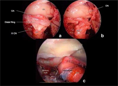 Endoscopic endonasal anatomy of the ophthalmic artery in the optic canal