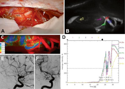 Semi-quantitative assessment of flow dynamics during indocyanine green video-angiography in the treatment of intracranial dural arteriovenous fistulas
