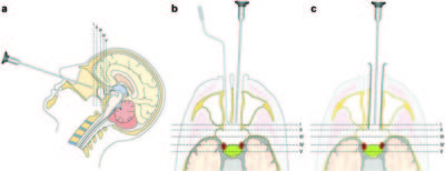 Binostril versus mononostril approaches in endoscopic transsphenoidal pituitary surgery