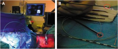 intraoperative_probe_based_confocal_laser
