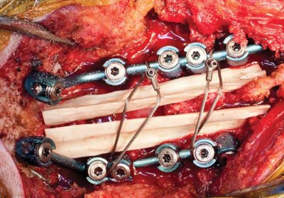 occipitocervical-fixation-a-single-surgeons-experience-with-120-patients