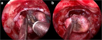 endoscopic-radical-hypophysectomy