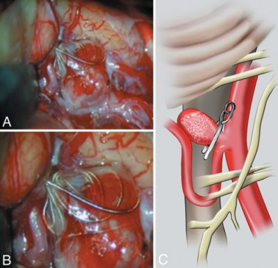 clipping-previously-coiled-aneurysms