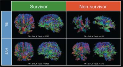 diffusion-tensor-imaging-a-possible-biomarker-in-severe-traumatic-brain-injury-and-aneurysmal-subarachnoid-hemorrhage