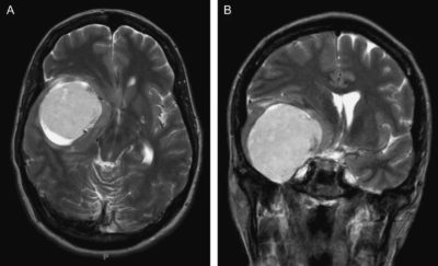 surgery for meningioma in the elderly and long term survival