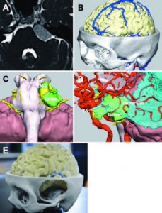 3D CG data and the color-printed plaster model for a left tentorial meningioma