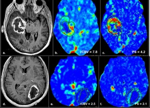 Blood-based biomarkers for malignant gliomas