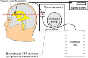 Automated intracranial pressure-controlled CSF LiquoGuard