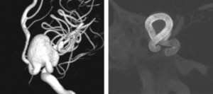 Flow-Diverter Devices for Intracranial Aneurysms
