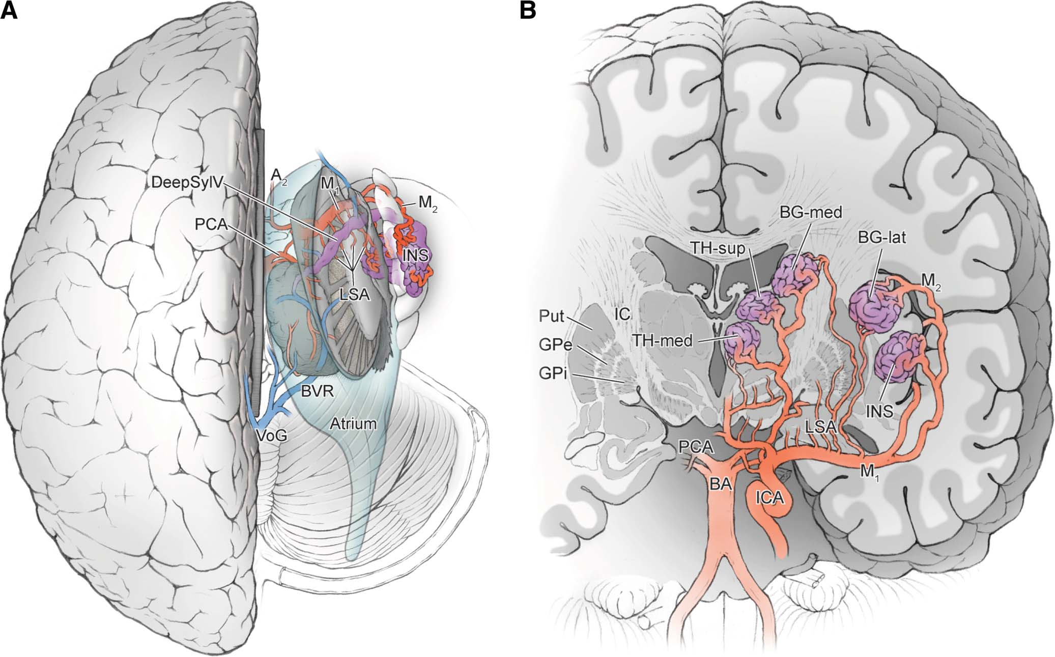 Deep Arteriovenous Malformations In The Basal Ganglia Thalamus And