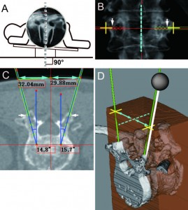 A novel 3D guidance system using augmented reality for percutaneous vertebroplasty