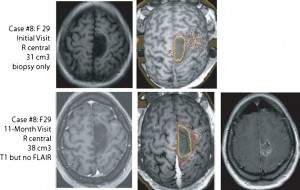 The preoperative use of navigated transcranial magnetic stimulation facilitates early resection of suspected low-grade gliomas in the motor cortex