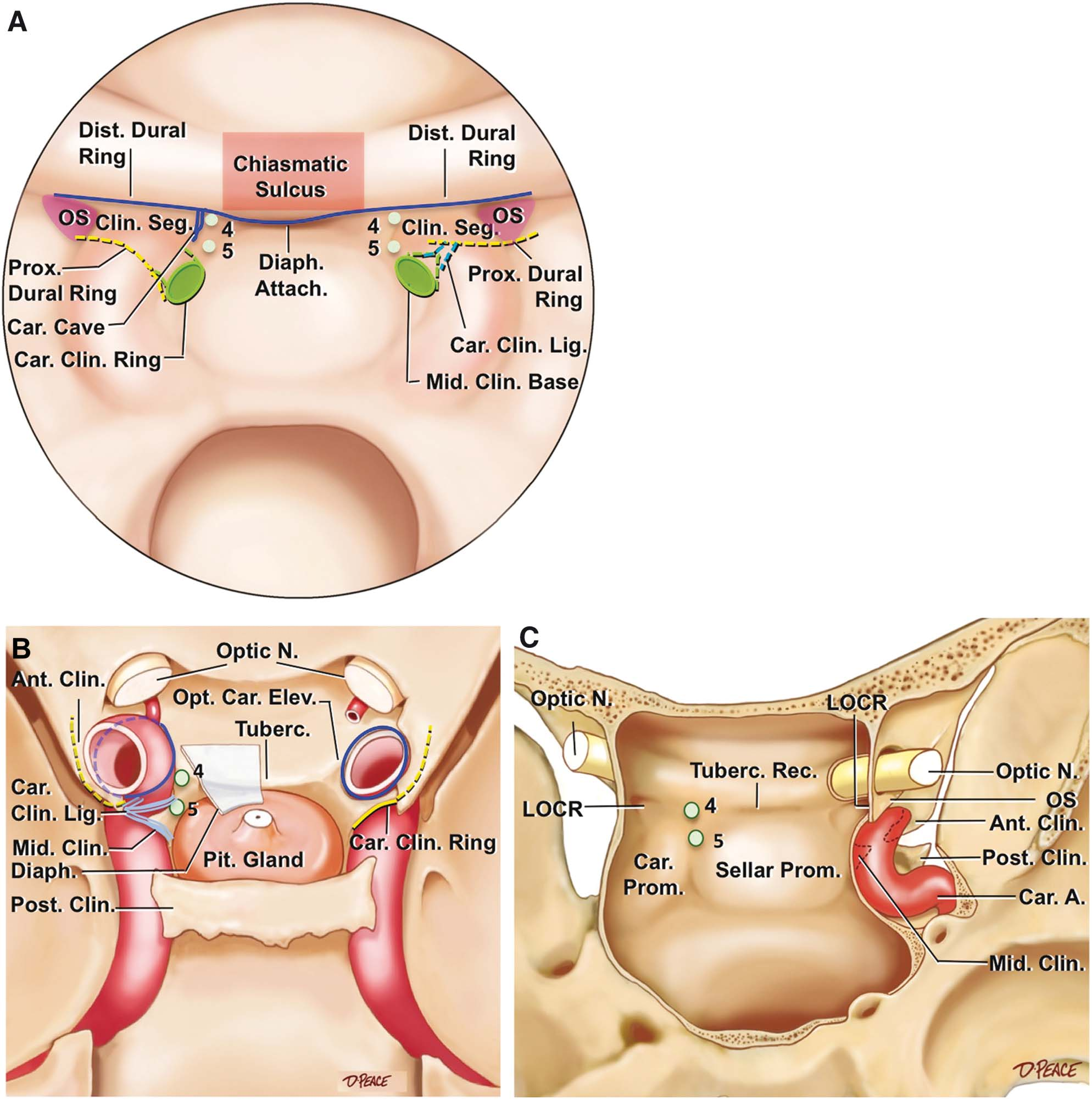 The Recesses of the Sellar Wall of the Sphenoid Sinus and Their ...