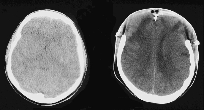 decompressive craniectomy for severe traumatic brain injury is life