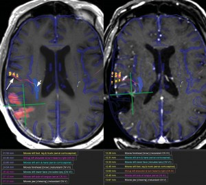 Real-Time Atlas-Based Stereotactic Neuronavigation