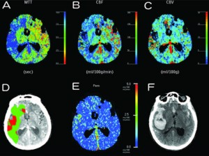 Clinical application of perfusion computed tomography in neurosurgery
