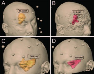 Microsurgical resection of extensive craniopharyngiomas using a frontolateral approach
